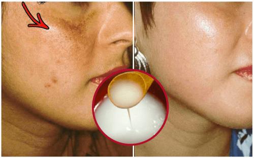 Как приготовить крем для осветления кожи?