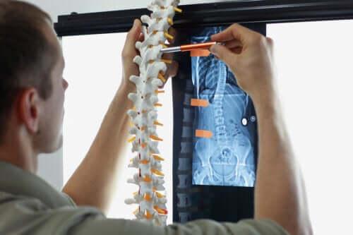 Метастазы в кости: симптомы и лечение