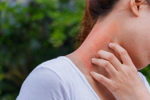 Дерматит и кортикостероиды: какая связь?