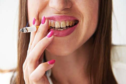 Меланоз курильщика