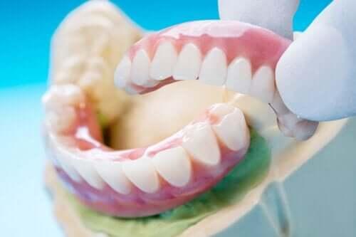 Зубной мост: типы, преимущества и недостатки