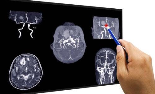 Аневризма головного мозга: лечение и восстановление